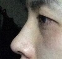 この鼻は高いですか?それとも低いですか?基準がわからないので質問しました。