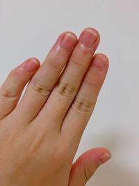 保育士、幼稚園の先生の方々に質問です。 この爪の長さは長いでしょうか?