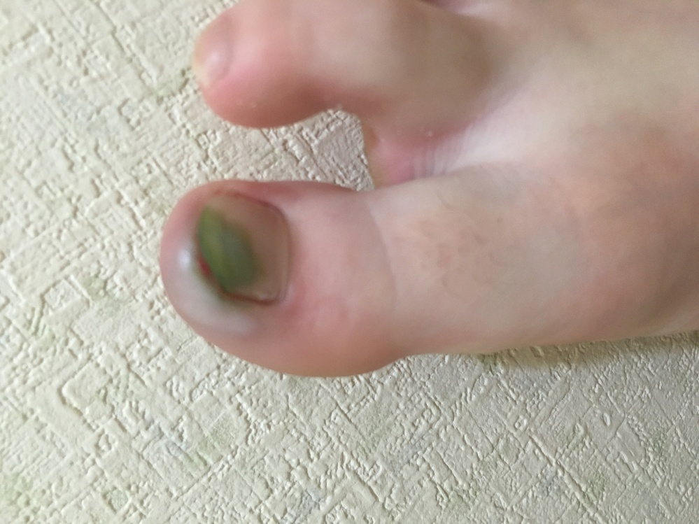 ネイルしてないのにグリーンネイル?になってしまいました。それともこれは水虫ですかね?どうすればいい