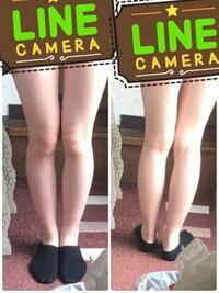 ミニスカートやショートパンツを履いてみたいのですが、この足じゃ見苦しいでしょうか? また、何キロぐらいにみえますか?(161cm)