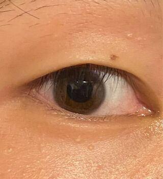 の 白い 目 ぶつぶつ 周り