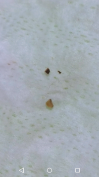 (画像有り)犬の歯について。歯磨きシートで奥歯を磨いたら画像のような黒い欠片がいくつものくっついており、歯を確認すると歯の上の部分が少し欠けているようにも見えます。かかりつけの動物病 院が休みなので分...