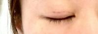 二重整形 埋没法について。 2020年6月6日にとある美容外科で右目のみ二重埋没法を施術しました。 写真は本日2020年7月25日現在です。 腫れぼったい状態が続き、縫い目もなかなか消えません。 糸を止めた目尻の...
