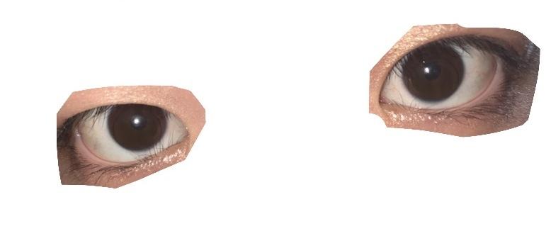 汚い目で申し訳ないです。 これは逆まつげですか? ビューラーを使おうにも目頭側でなかなか上手くいきません。 まつげが白目に当たっているように見えるのですが痛みなどは無いです。 また、現在アイテープを使って二重にしています。 (写真の時はしてないです) 埋没の手術をいろいろ調べていたところ逆まつげの手術で二重になったという例も聞きました。 ですがあくまで逆まつげの治療のための手術なので特に逆まつげの影響が無ければ美容外科で埋没手術のみが良いですかね?(;_;) 教えてください...!