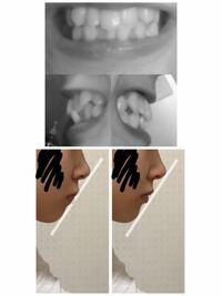 歯列矯正・口ゴボについて 汚い写真申し訳ございません。 私は口ゴボが気になっています。  そこで質問なのですが、歯列矯正で左下の口から右下の口になることは可能だと思いますか?(上の歯の写真が私の今の歯並びになります。)  矯正代を今貯めている最中なのでカウンセリングに行くに行けません…。 そこでこちらで少しでもアドバイスがもらえればと思い質問させて頂きました。 もしよろしければよろしくお願い...