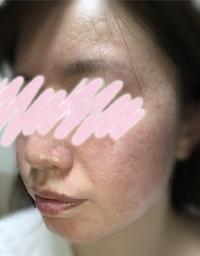 30歳、肌が汚すぎて辛いです。(画像あり)  はじめまして。 画像の通り、肌が汚すぎて本当に悩んでいます。 不快な思いをさせてしまった方がいたら申し訳ありません。言葉ではなかなか伝わり づらいと思いまし...