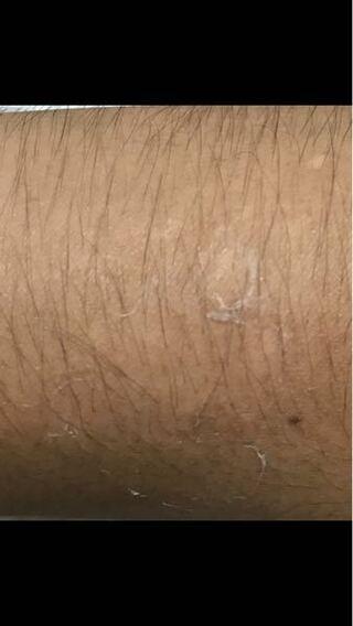 うつる 脂 皮膚 炎 漏 性