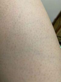 二の腕や太ももなどのポツポツした黒ずみやIラインの黒ずみをなくす方法はありませんか? またカミソリ負けの肌を整える方法はありますか?