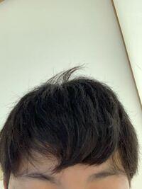 前髪だけ縮毛矯正して、家に帰ってすぐシャンプーしてしまいました。 そしたら、こうなりました。 どうしたらいいですか。