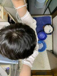 これってつむじハゲですか? 髪質はくせ毛の軟毛です。写真はストレートアイロンでクセを伸ばしています。