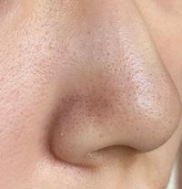 [肌、毛穴、いちご鼻] 私の肌は敏感肌で赤みがあります。 中学生の頃から顔中心の毛穴が気になって スクラブ系の洗顔を使ったりしましたが、 高校生になった今も改善されません。 肌の弱さ の関係であまり刺...