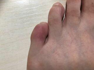 放置 足 ヒビ の 小指