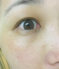 31歳です。加齢と思われる顔の劣化が想像よりはやくすすみ鏡をみるたび絶望感で外に出るのが億劫です。 特に目の下の茶グマ、しみ、そばかす、いわゆるゴルゴ線に悩んでいます。写真をみてのとおりです。お目汚し...