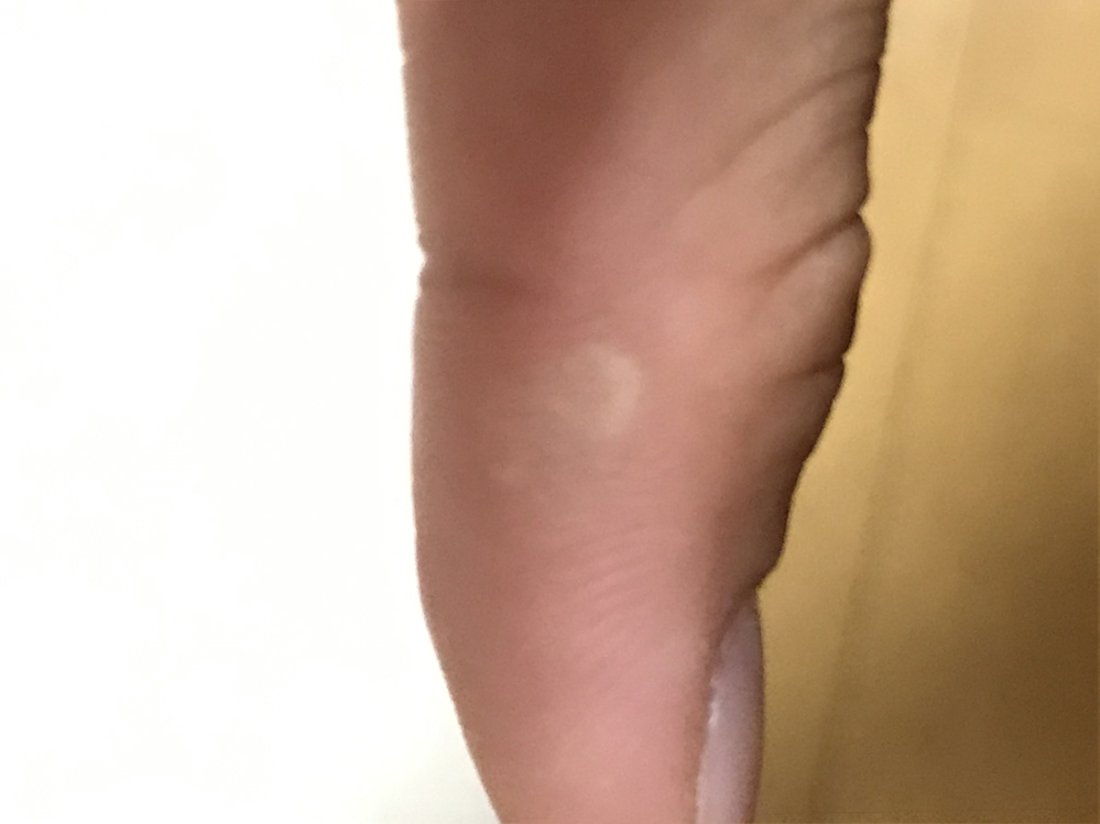 部活でテニスをやっているのですが、右手の親指がグリップを握っていると摩擦でなのか痛くなります。 そして今写真通りの状況となっております(表面が硬い) こういう時どうすればいいんでしょうか?