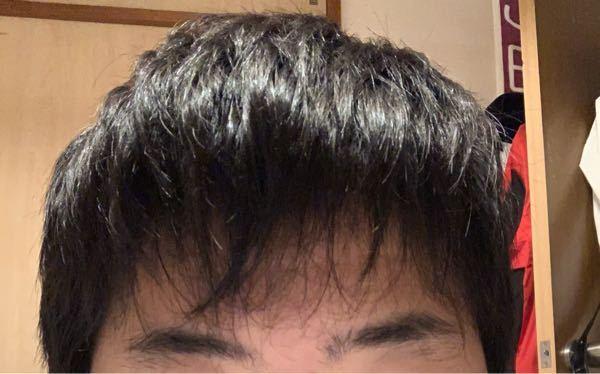前髪が薄くて悩んでます。高二です。 どうすればいいのでしょうか。マッシュにして欲しいと色んな人に言われてしてみたいなと思ったのですが一向に前髪が伸びないんです