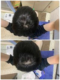 これってつむじハゲですか? 髪の毛はくせ毛の軟毛です。 写真はストレートアイロンでクセを伸ばしています。 回答よろしくお願いします。