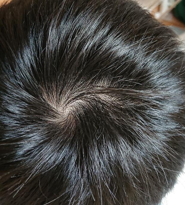 これは薄毛ですか?