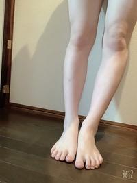 汚い写真ですみません。  この足でミニスカートを履いていたらどう思いますか? 正直足は細くないですし太ももは太いです。でもヒールの高いブーツを履くなら多少マシに見えて問題ないんじゃないかと思っていま...