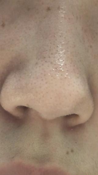 鼻 の 黒ずみ を とる 方法