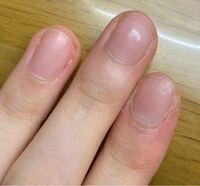 爪を綺麗にしたいのですが何をすれば良いですか? 下は私の爪です。 爪の周りが白くて、ささくれもあり見栄えが悪いので悩んでいます。 ネイルはまれにしているのですがいつも汚くなってしまいます。