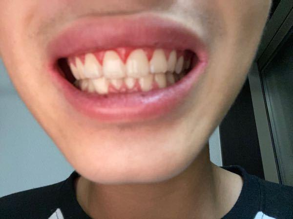 汚い写真失礼します。 自分は最近、歯にこだわるようになってきて… 歯を磨く時、毎回、血が出ます。 そんな時はどうしたらいいですか? 歯科衛生士か歯に詳しい方が いましたらよろしくお願いします。