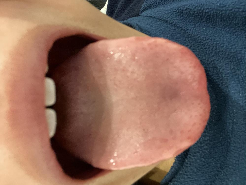 この舌苔は普通ですか? 朝軽く磨いて夜はこんな感じです