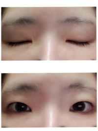 目 美容整形 自分の目にコンプレックスがあり、 美容整形で二重もしくは、 医療眼瞼下垂の手術を考えています。 自分の目の形は添付の画像の通りです。 完全に開くにはおでこにシワがよるくらい 目を見開かなけれ...