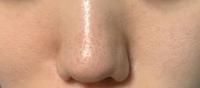 鼻の毛穴の黒ずみ、開きと頬の毛穴の開きが写真のようにすごいです。 改善する方法を教えてください。 顔を触らないとか洗顔しすぎないとかそういう生活習慣ではなく美容皮膚科などレーザーなどの類の処方でおすすめを教えていただきたいです。