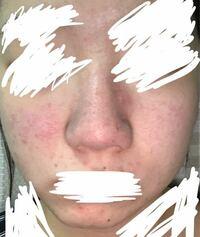 汚い写真ですみません。肌が最近凄く荒れていて、自信がなくなってて、とても辛いです、 毎日泡で夜洗顔して保湿もしているのですが、  1日2回洗顔した方がいいのでしょうか?  またこのようになっている肌はどう...