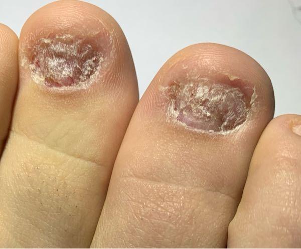 汚い画像すみません。足の爪です。 高校生です。イライラする時にハサミやピン、ニッパーなどで爪をえぐってしまう癖があります。下の写真のものでも治った方です。この前までかのうしてしまったりうんだりし...