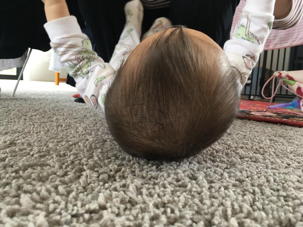 娘の頭の扁平どうでしょうか。 もうすぐで7ヶ月になる娘なのですが、頭の扁平が目立ちます。左後ろが大きくはみ出しており、頭全体としても左に大きく偏りが見えます。生後間もなくから右の向き癖が顕著で、...