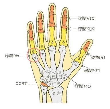 左の手のひらの関節がズレました(画像丸の所) 手の甲側にゆっくり押したら元に戻りましたが、偶になるので不安です 痛みはありませんが少し違和感があります