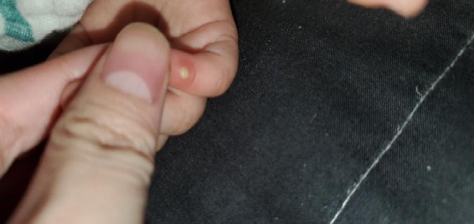 生後11ヶ月の娘の指にできものができました。 小指に大人のニキビ?のようなものが今朝できていました。朝はここまで黄色くなってなかったのですが。。。 本人は特に痛がる様子もないのですがこれは何で...