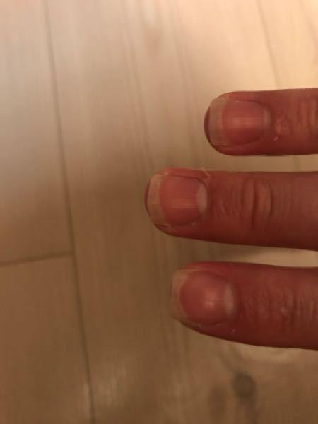 昔爪を噛む癖があって爪の形が横長です。 これはもう手遅れでしょうか、、、 治す方法を知っている方がいたら教えて欲しいです。