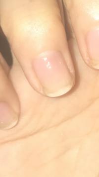 画像あります。 爪の白い部分とピンクの部分の境目?が色が変わるのですが、これってなんですか? 毎日キューティクルオイルを10回ほど塗ってネイルサロンにも通って自爪育成中なのですが、 病気ですか?それともピンクの部分が伸びてくるのでしょうか?