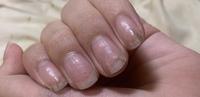 これはグリーンネイルでしょうか? ジェルネイルをオフして2ヶ月経ちます。爪の色が変色してからは1ヶ月ほど経っています。治りません。