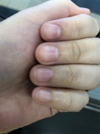 爪を伸ばしたいです。 私は小さい頃から爪をむしるくせがあって、 中学生になっても辞められません。 治そうとして爪を伸ばすと、 どうしてもめくりたくなって、 ストレスが貯まります。 今は爪を触らずに6日経ちましたが、 その期間だけで爪を切ろうとした回数は 30回以上です。もう耐えられなくて、、、 噛んだりとかはしないので何かを塗っても意味ないし、学校があるからネイルとかもできません。 どうした...