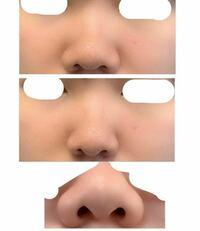 将来、鼻の整形をしたいと考えています 写真の上段、下段は鼻の加工無し、中段は加工したものです。鼻の横の厚みも取れれば理想に近い鼻です  現在主に考えているのは①耳の軟骨移植で鼻先をシャープに ②小鼻縮小 ...