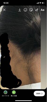 襟足はどこまで剃っていいか分かりません… この前脱毛行った時に剃ってもらってから照射してもらったのですが、、、 この下の長い毛は剃っちゃってもいいのでしょうか??