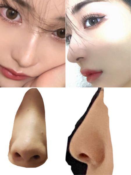 鼻整形を考えています。 ヒアルロン酸で上の写真の方の様な細い鼻筋と丸く、 とんがった鼻にしたいのですが近づけることは可能でしょうか?
