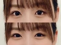日向坂46、佐々木美玲さんの左目なんかおかしくないですか? ブログを見ていたら、不自然だなぁと思ったのですが、なぜなのでしょうか?