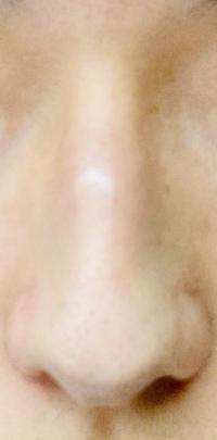この鼻はニンニク?それとも団子鼻ですか?