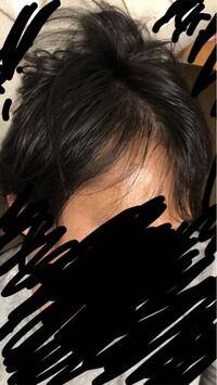 この頭皮ってハゲてきてますか?