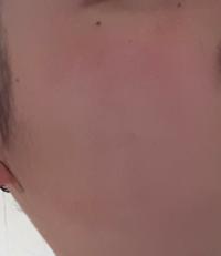 これって肌綺麗っていいますか?風呂上がりで赤ら顔ですが。。