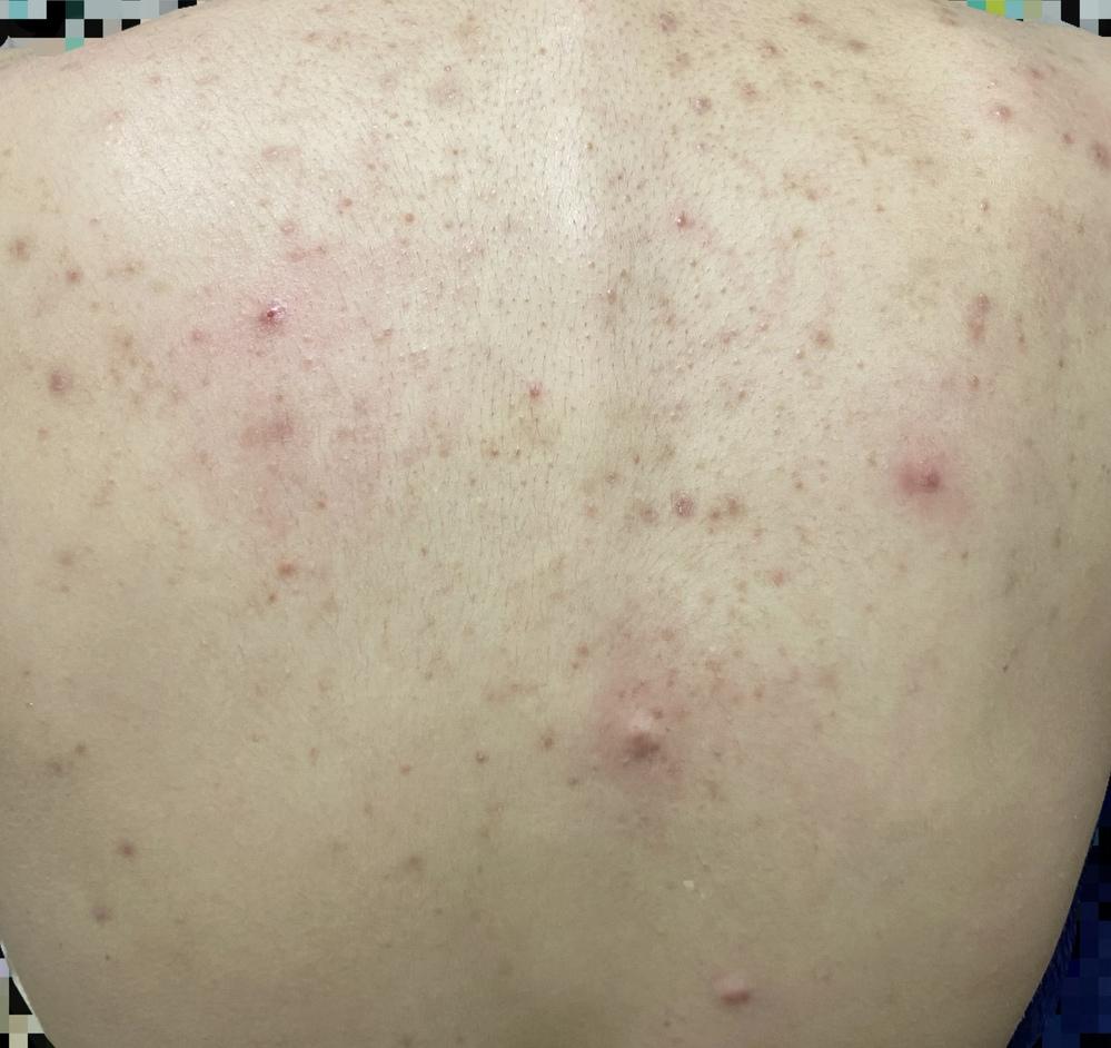 疹 原因 ジベル ばら色 糠 粃