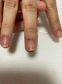 ネイル検定3級を受けるのですが、この指の皮膚は疾患になりますか?減点対象に入りますか?