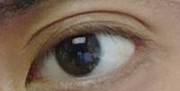 この写真の目、蒙古襞ありますか? できれば張りの強さも教えて欲しいです