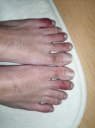 病気 痛い 足 指 の