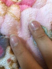 爪がこんな感じで ゴミ?みたいなのが溜まっているのか めっちゃ汚くて結構コンプレックスです。 ケアとかどうやったらいいでしょうか