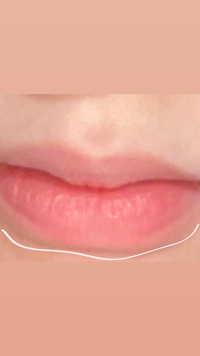 女子の悩みです。 私の口はおそらくたらこ唇だと思うのですが この線の引いてある部分の治し方などありますか? プリクラでも目立ってしまってすごくコンプレックスです。 どうすればいいでしょうか。